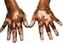 Treatment of Vitiligo