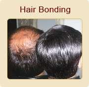 Hair transplantation in patparganj in delhi