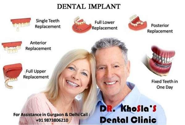 Best dental implants clinics in delhi