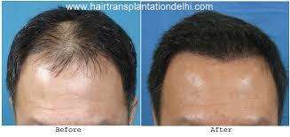 Affordable hair transplantation cost in delhi