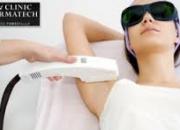 Laser Hair Removal in Noida