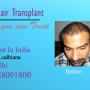 Hair transplant surgery treatment