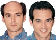 First time in india! non-surgical hair replacement with 100% natural hair