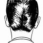 Cure Your Baldness or Hair Fall Through Homeopathy