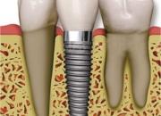Cheap Dental Implants In Delhi