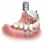 Root Canal Treatment | Best Dentist in Pune