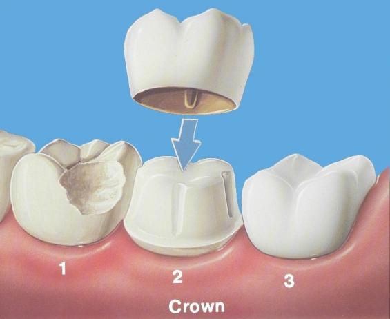 Dental implants in pune