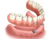 Affordable Dental Implants Delhi India