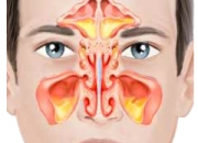Gentle and effective homeopathy treatment for sinus