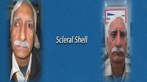 Artificial eyes in delhi, artificial eyes in india, artificial eyes center in delhi, artif