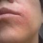Free consultation for eczema