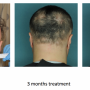 Hair Fall Treatment In Indore