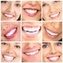 Smile Makeover at The Dental Roots