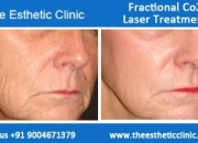Fractional Co2 Skin Resurfacing Treatment Cost in Mumbai