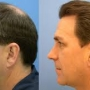 Best hair transplant clinic in Bangalore