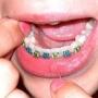 Dental Braces at Confident Dental Care
