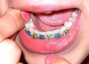 Dental Braces at Confident Dental Care