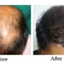 Best hair transplant clinic in Bangalore | Hair weaving Bangalore
