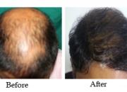 Best hair transplant clinic in Bangalore | Hair weaving Bangalore