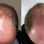 New Hair Regrowth System Online