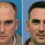 Hair Transplantation in Delhi – Call us for concession (9650 708899)