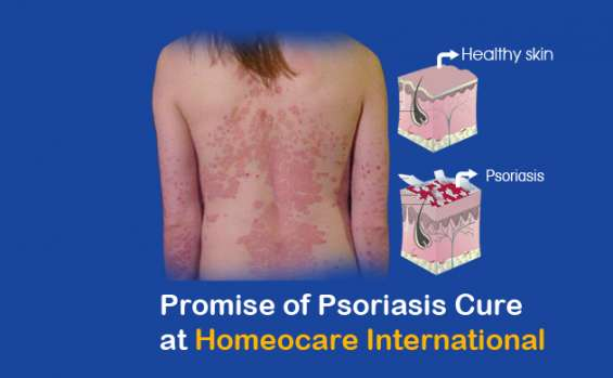 Get away from psoriasis through effective homeopathy treatment