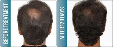 Nutrite hair transplant in delhi