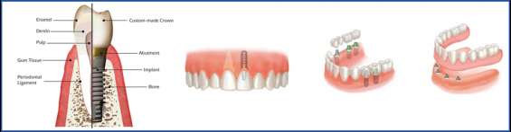 Dental implants treatment in mumbai