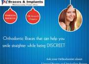 Dental Clinic in Gurgaon | Braces & Implants Multispeciality Dental Clinic |
