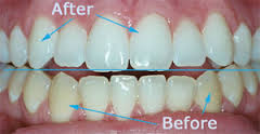 Looking for best and affordable teeth whitening services in delhi