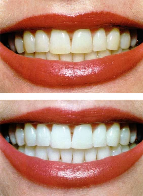 Get best dental solutions from ayushmaan dental clinic