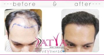 Synthetic hair transplant, biofibre hair implant in delhi