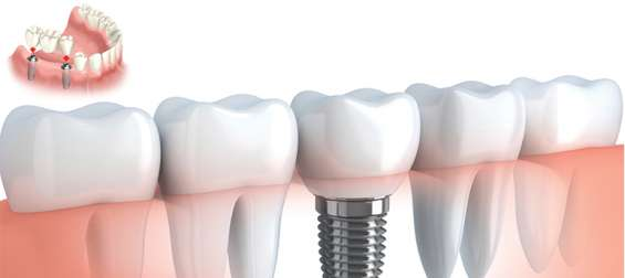 Dental care services in chandigarh