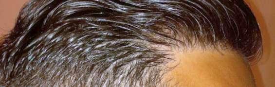 Fue hair transplant | hair loss treatment in jaipur- alvi armani