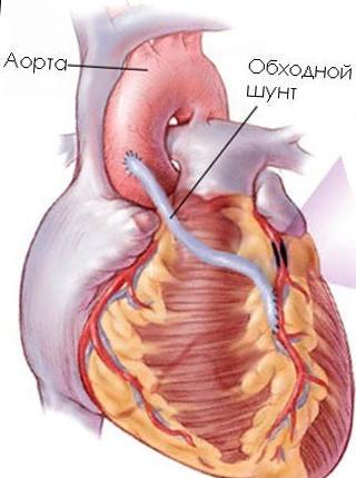 Liver cirrhosis treatment in nagpur