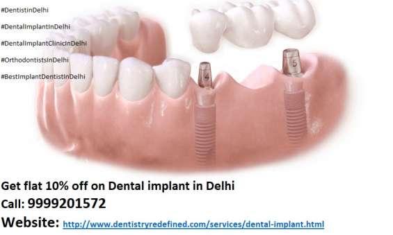 Best implant dentist in delhi