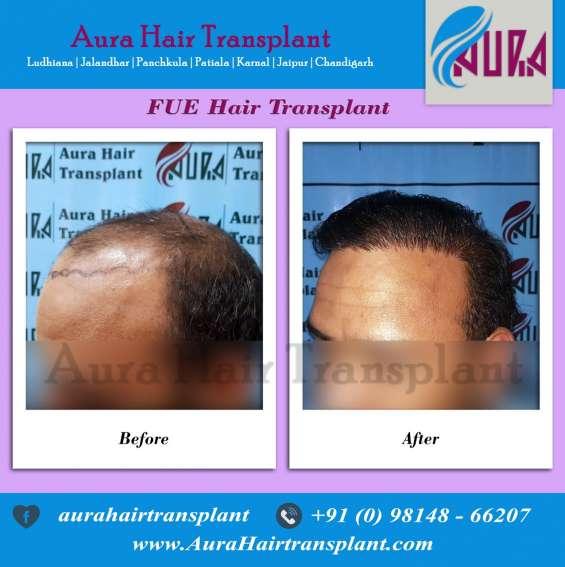 Hair transplant patiala