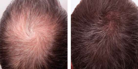 Let's stop hair thinning problem by prp hair loss treatment