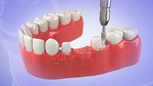 Best dental clinics in vizag